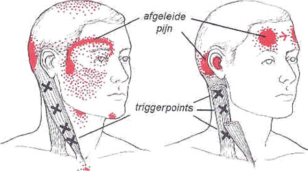 triggerpoints-tekening